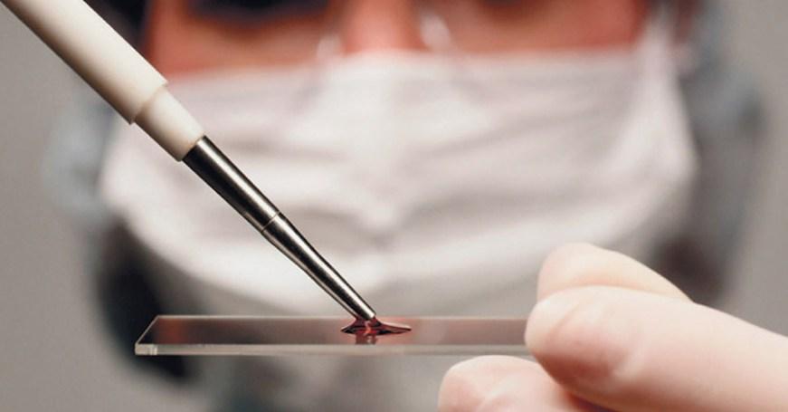 9 главных показателей крови, которые сигнализируют, что у вас есть проблемы
