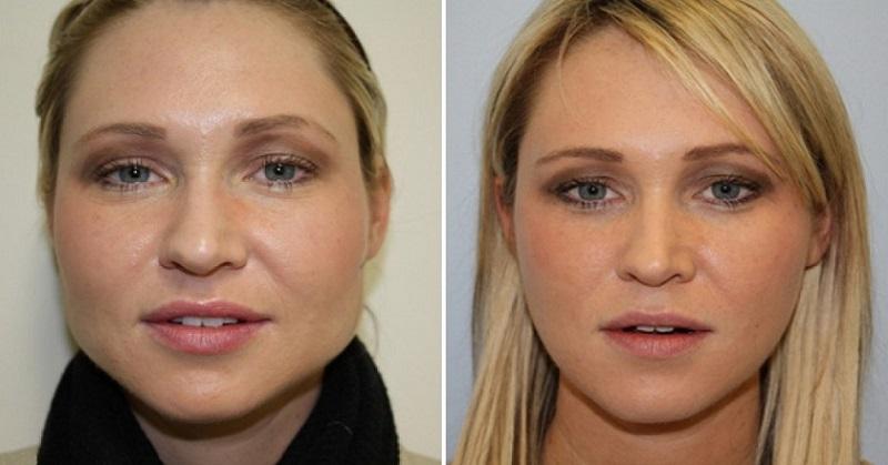 В первую очередь худеет лицо! Короткая диета на неделю, в конце которой ты попрощаешься с 6 кг.