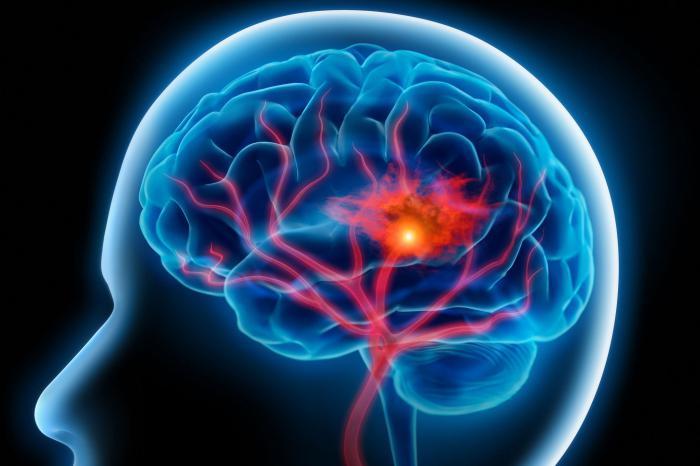 Отрава, которая живет в Вашем мозге 3 года