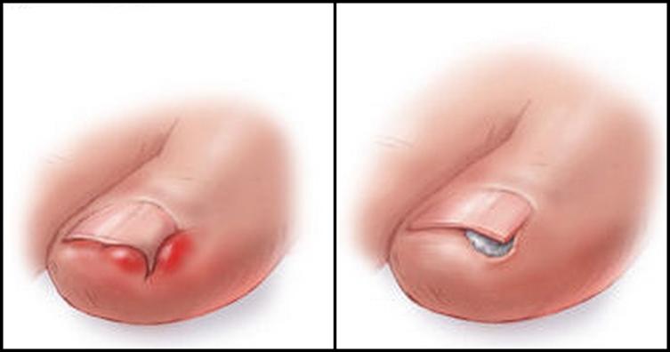 4 средства для лечения вросших ногтей в домашних условиях