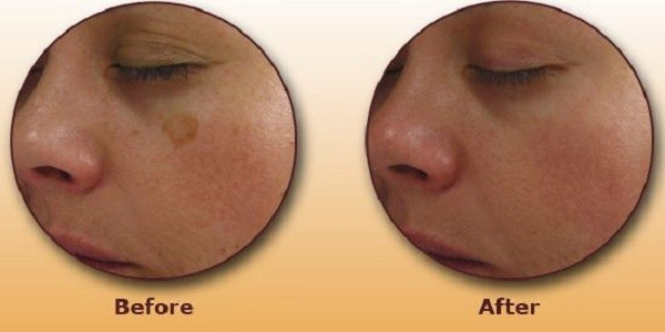 Попробуйте этот простой трюк, чтобы избавиться от коричневых пятен на коже лица